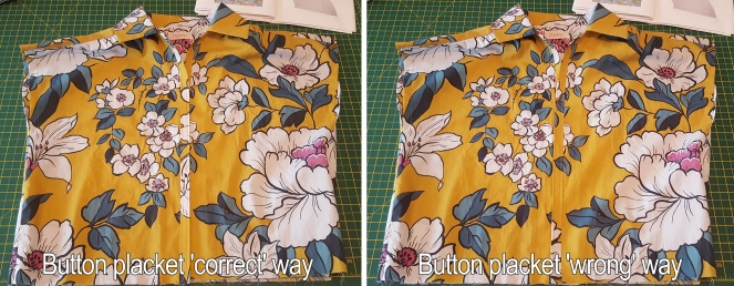 1ButtonPlacket
